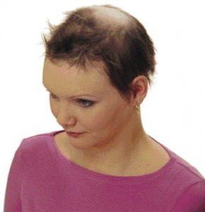 Wigs For Female Pattern Baldness 82